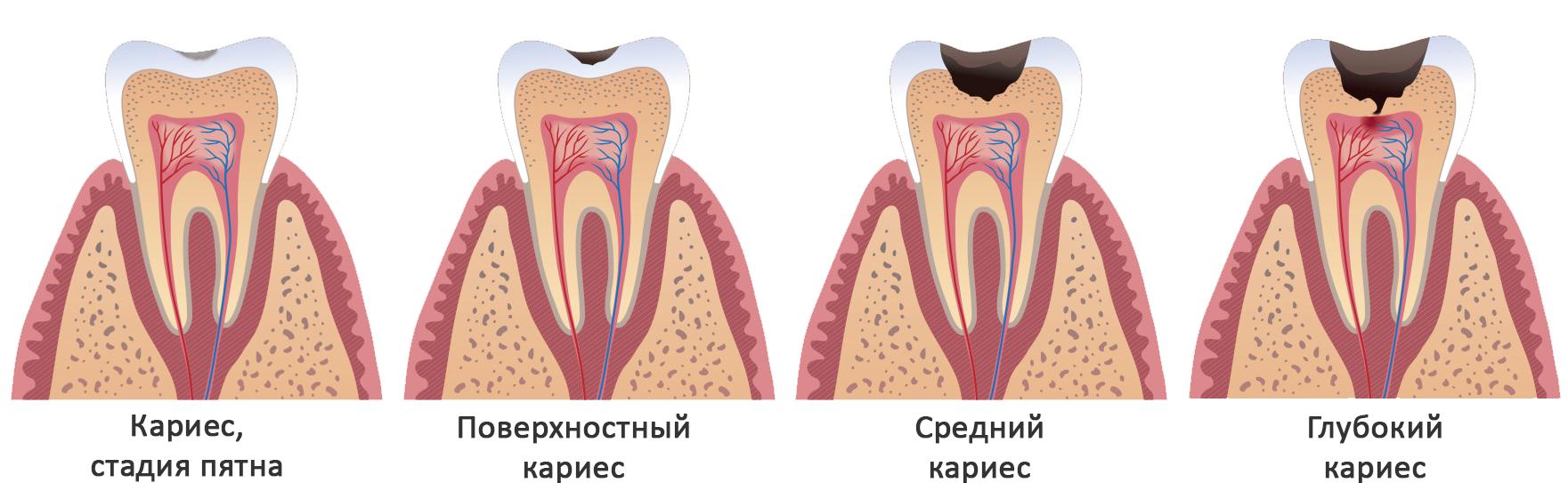 Дистопированный зуб — виды, причины, а также методики устранения проблемы. дистопия зуба: причины, последствия, лечение