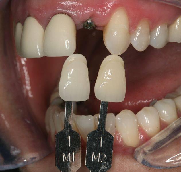 Как делают слепки для процедуры протезирования зубов и брекетов: техника, используемые материалы