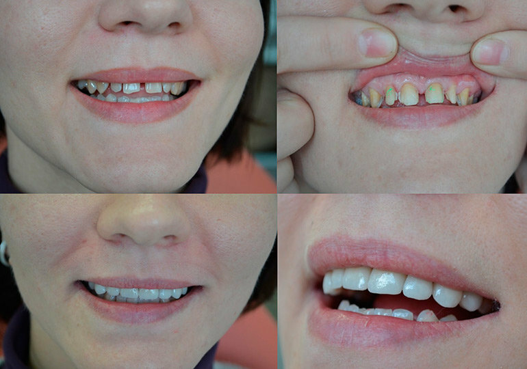 Виниры – достоинства и недостатки: портят ли они зубы, стоит ли их ставить и какими будут последствия?