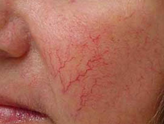 Виды кожных заболеваний на лице: названия с описанием, причины и лечение