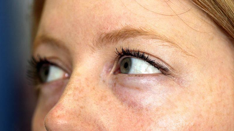 Мешки под глазами: причины, диагностика, когда опасны и как избавиться?