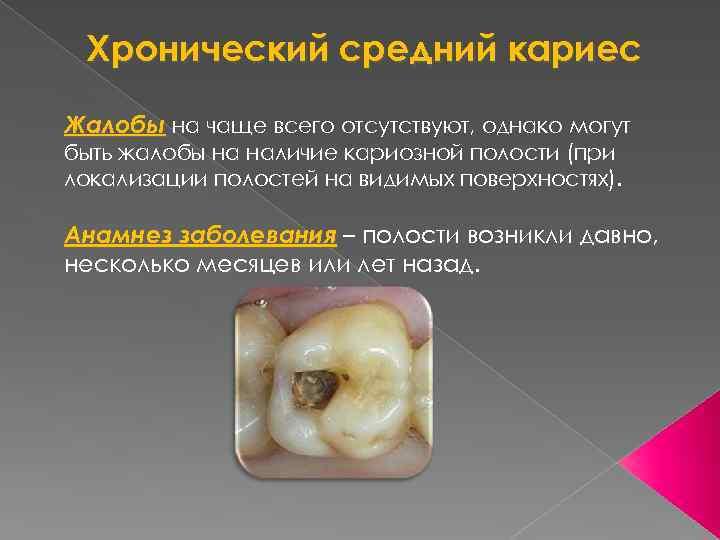Как может выглядеть кариес на зубах: фотографии