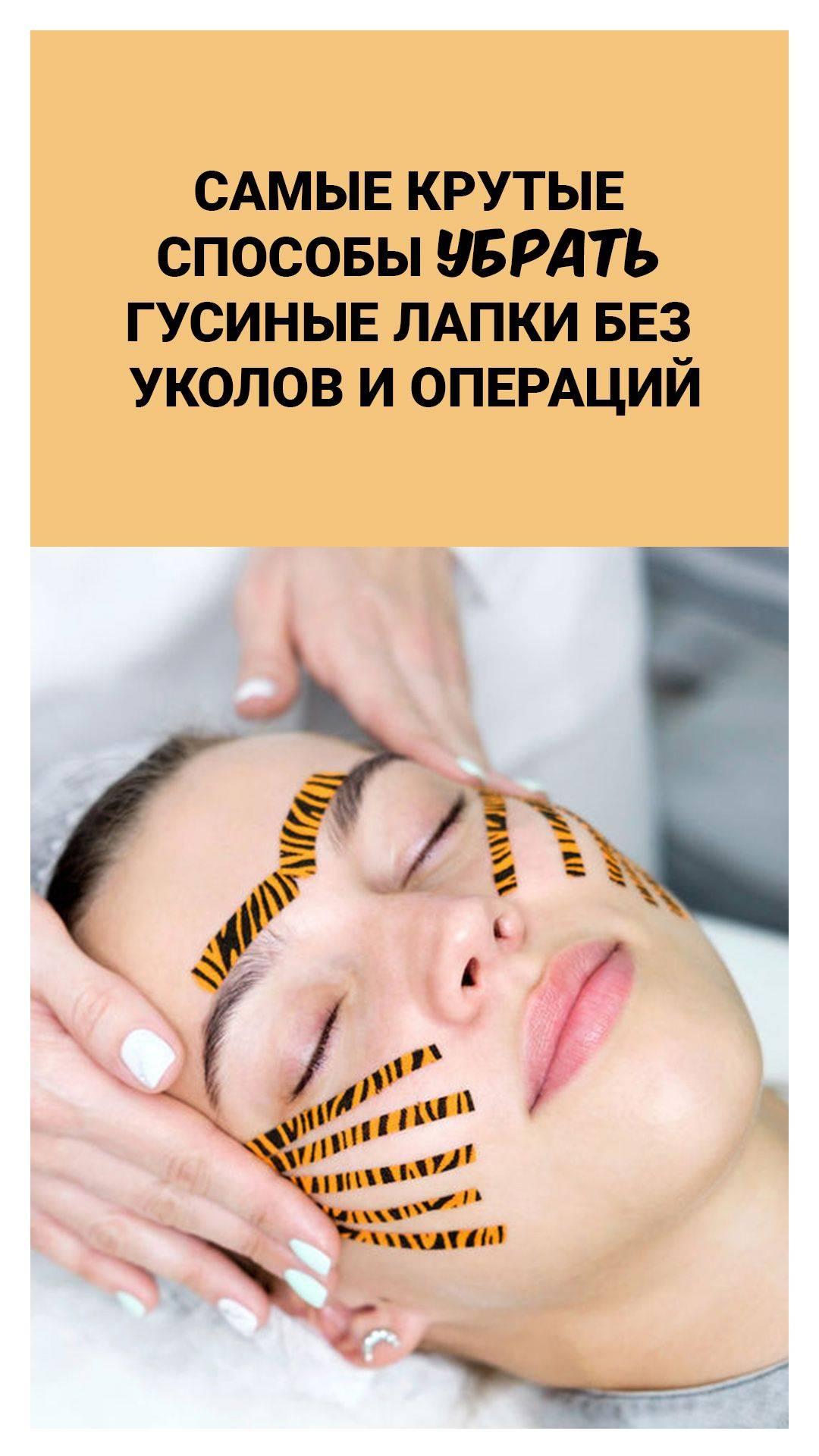 Как избавиться от гусиных лапок вокруг глаз?