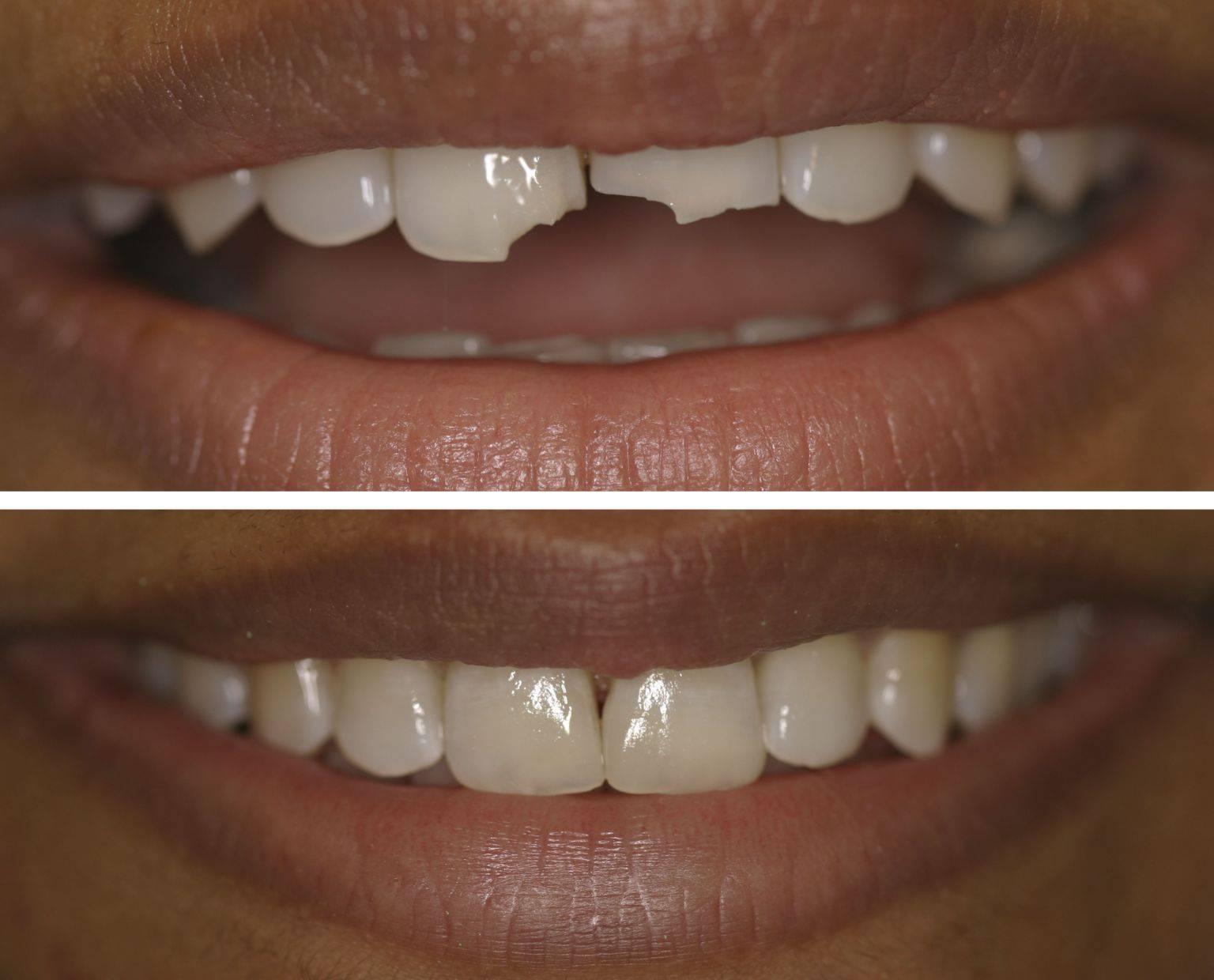 Подпиливание передних зубов до и после
