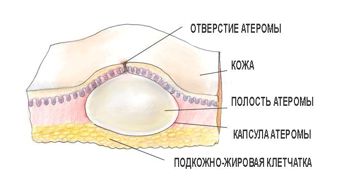 Атерома волосистой части головы: причины и методы лечения