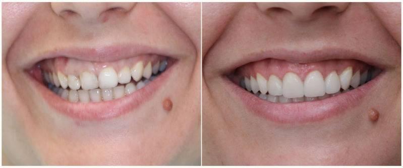 Можно ли подпиливать зубы в стоматологии