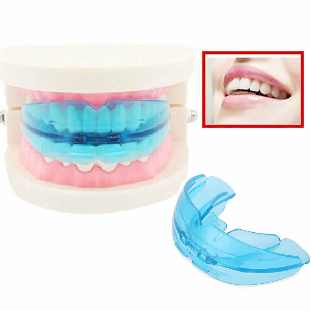 Как правильно подобрать капы для зубов?