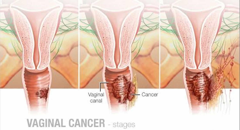 Почему жжет во влагалище, причины и лечение сильного жжения внутри матки