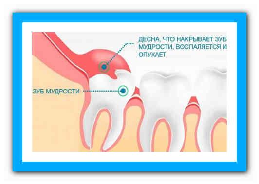 Почему болит десна возле зуба: причины ноющей боли