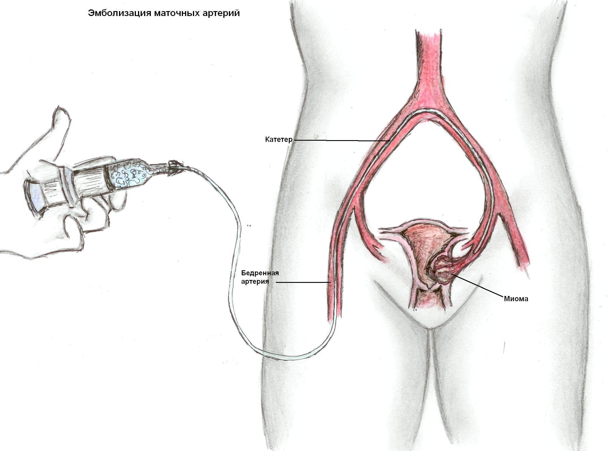 Эмболизация матки при миоме – этапы эма, результаты эмболизации маточных артерий и цена