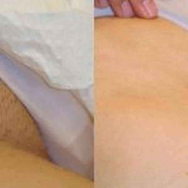 Лазерная эпиляция бикини — как подготовиться? стоит ли делать лазерную эпиляцию зоны бикини? противопоказания к процедуре лазерной эпиляции