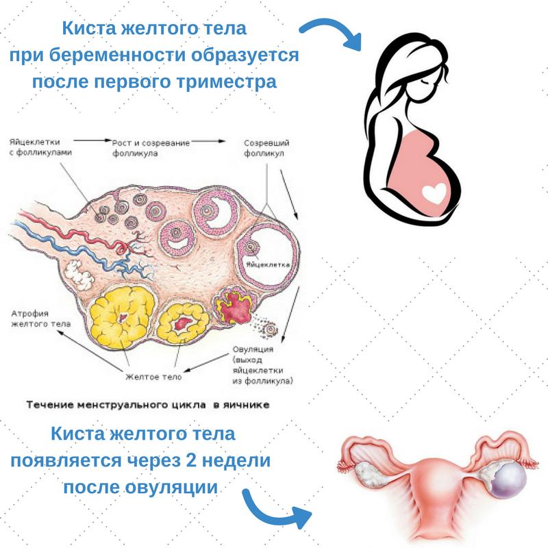 Киста желтого тела на ранних сроках беременности