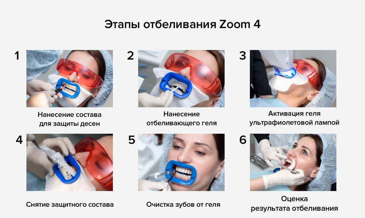 Отбеливание зубов по системе zoom