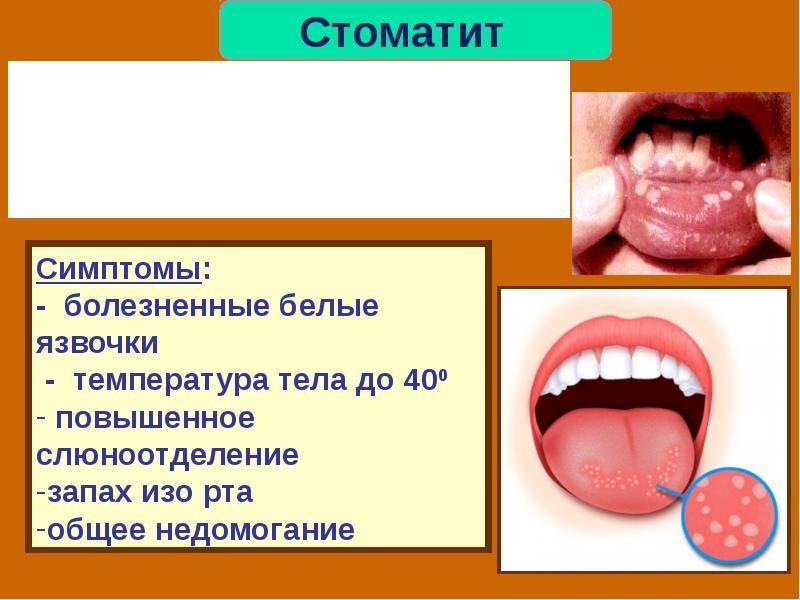 Привкус йода во рту - что это значит