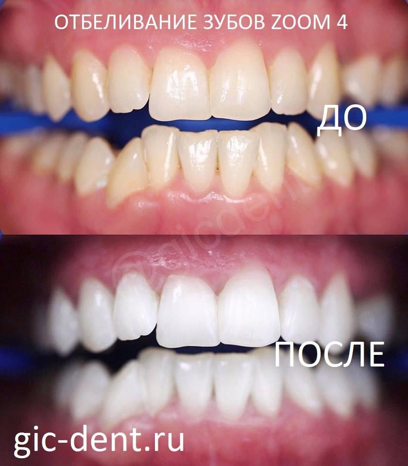 Осветление эмали — это просто! но сколько держится отбеливание зубов?