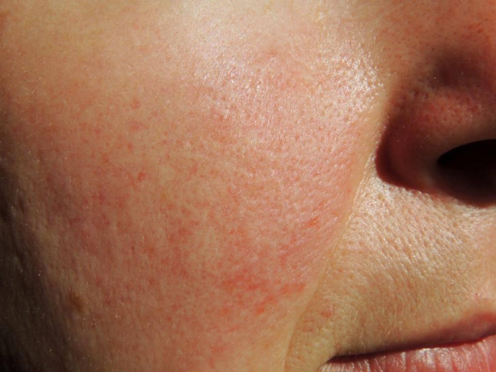 Хлоазма: симптоматика заболевания, помощь традиционной и нетрадиционной медицины