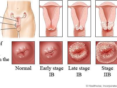 Эрозия шейки матки: нужно ли лечить до беременности?