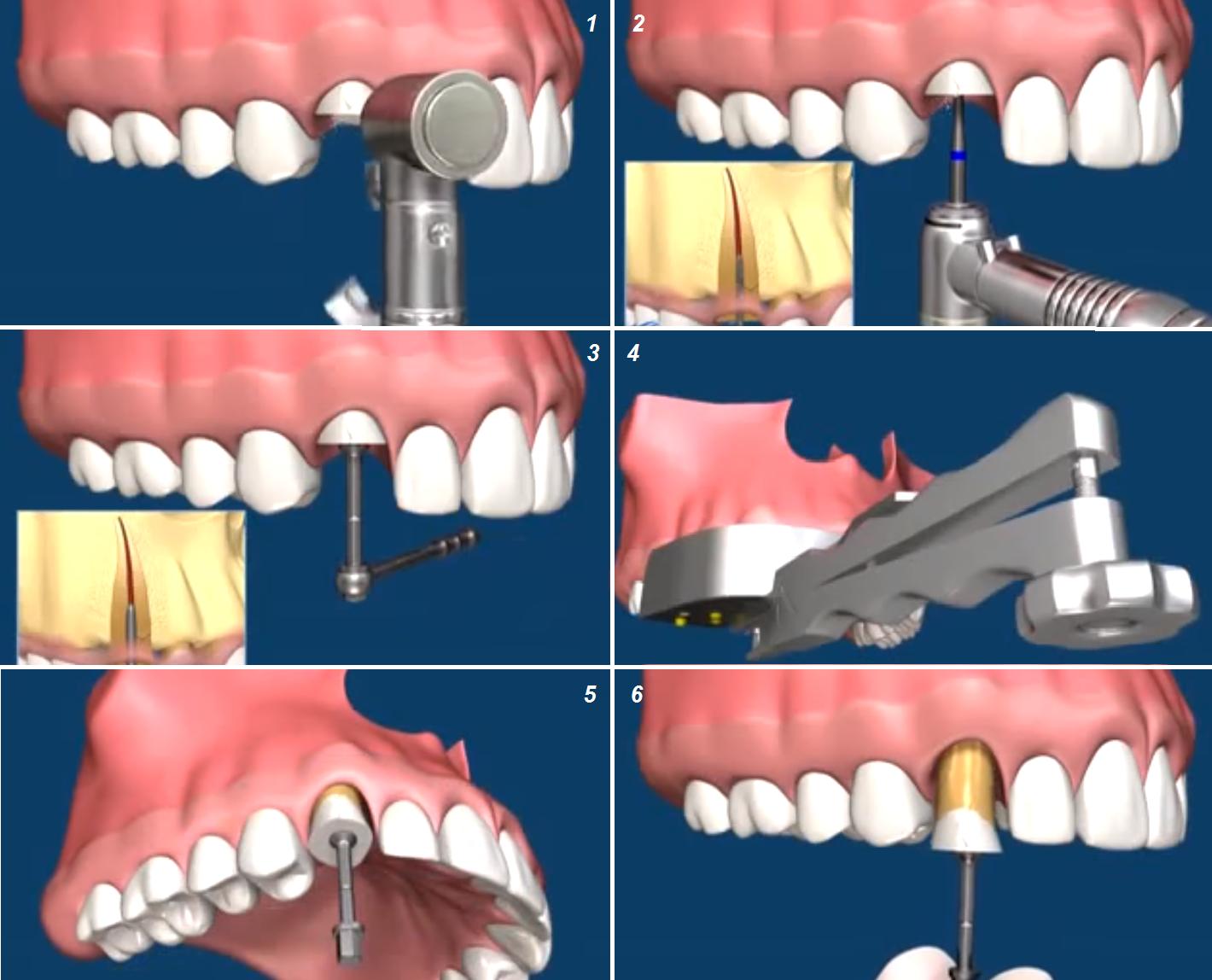 Что важно знать об удалении зубов