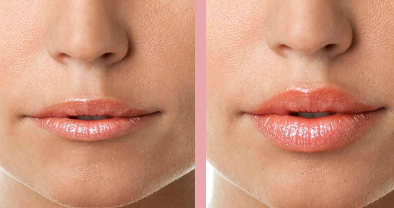 Ботокс в губы: фото до и после, отзывы