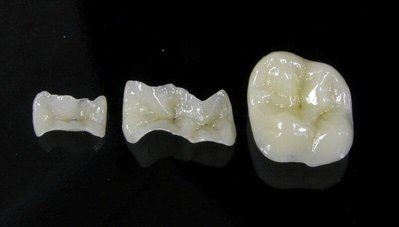 Плюсы и минусы коронок из металлокерамики
