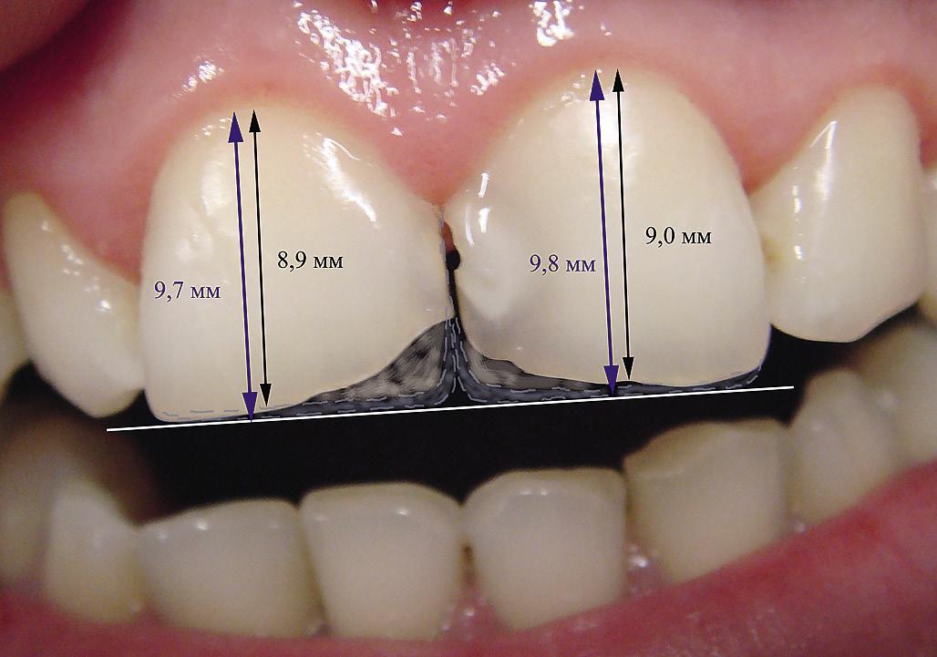 Патологическая (ускоренная) стираемость зубов: причины и последствия