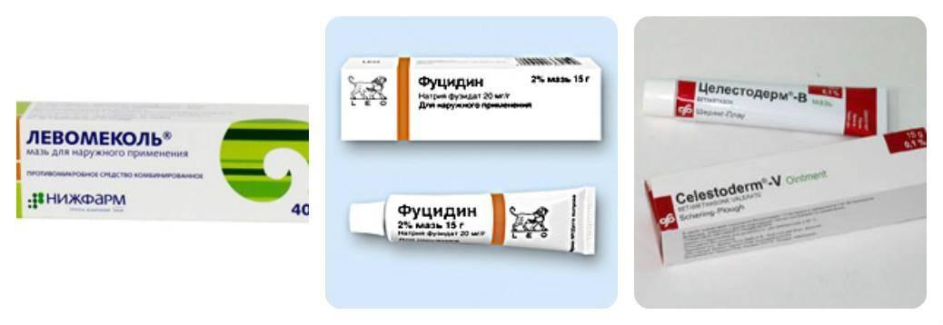 Мазь от аллергии — гормональные и негормональные, для лица, для рук