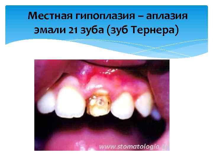 Аномалии развития и положения зубов: причины, виды, лечение