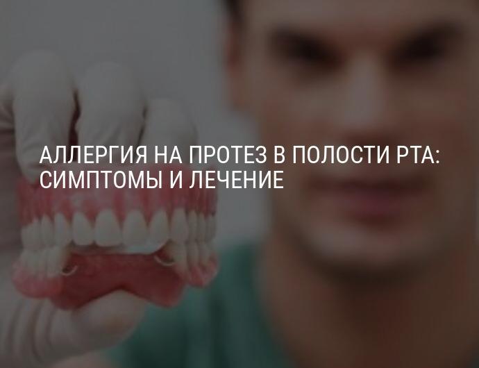 Как избежать аллергии на зубные протезы и стоит ли аллергикам устанавливать имплантаты