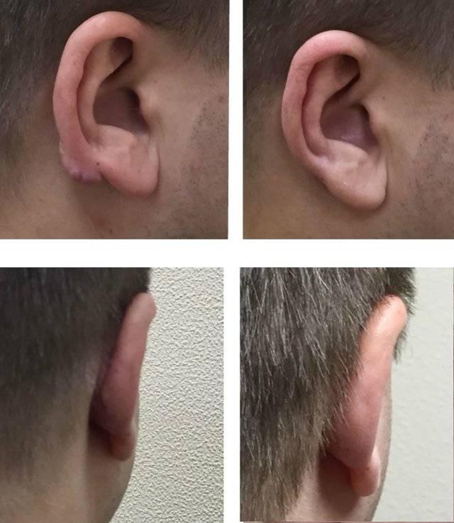 Пластика мочек ушей - пластика ушных мочек