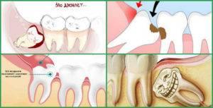 Болит десна в конце нижней и верхней челюсти: причины, симптомы, лечение