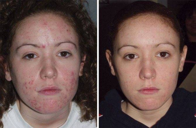 Причины появления акне и прыщей на лице — как избавиться от прыщей при помощи масок и мазей: советы дерматолога