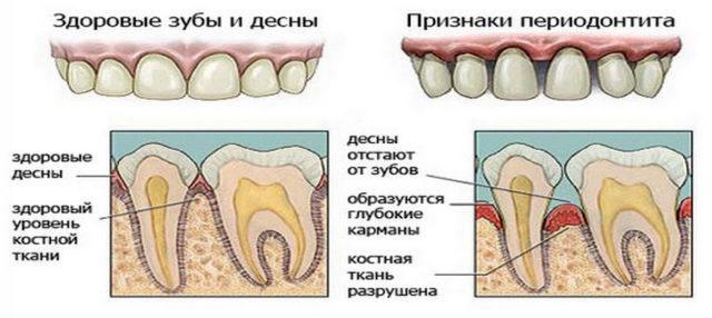 Чем снять зубную боль при беременности в домашних условиях какие обезболивающие таблетки можно принять?