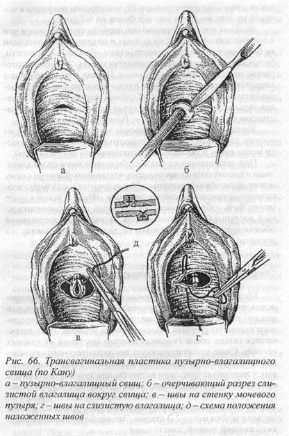 Мочевой свищ код мкб 10