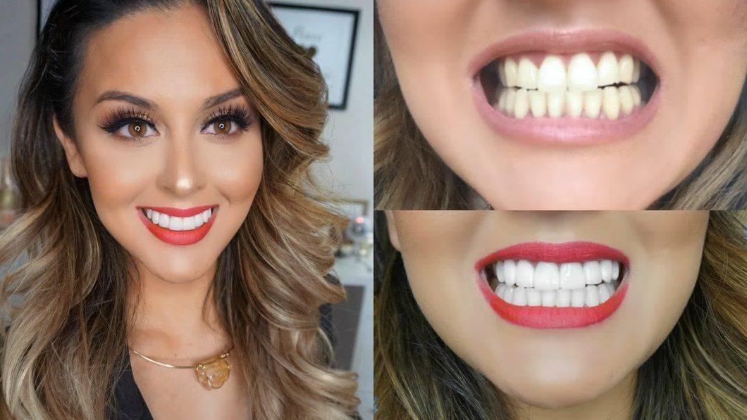 Чем знаменитости отбеливают зубы
