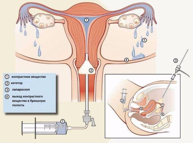 Как проверяют проходимость маточных труб: от простого к сложному