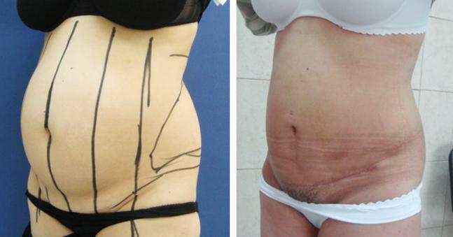 Миниабдоминопластика: как проходит реабилитация