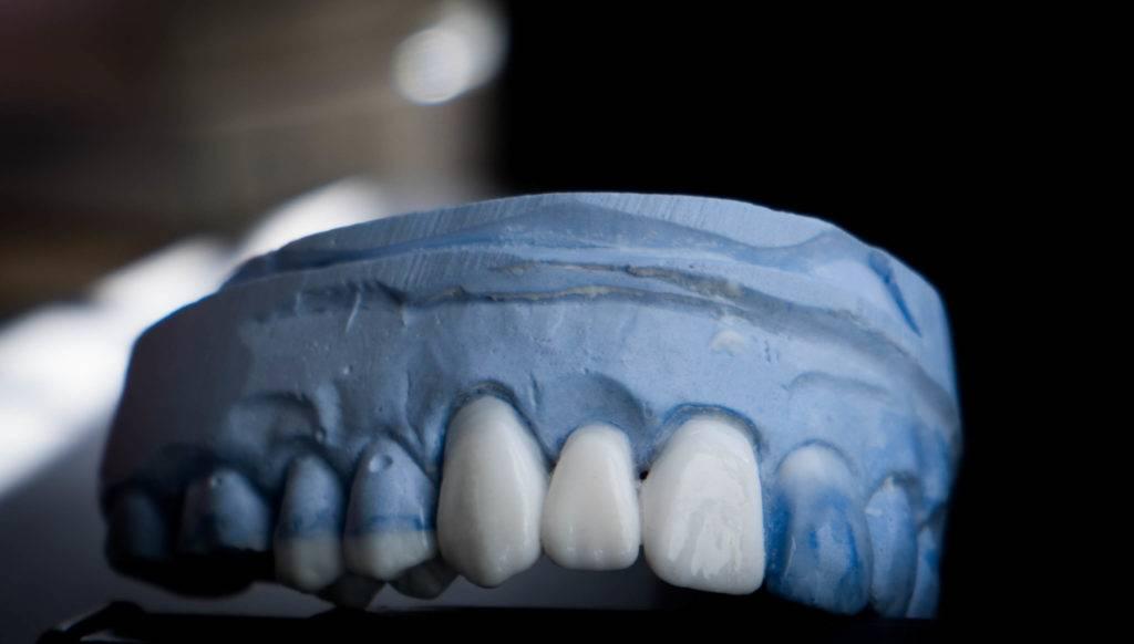 Тонкости воскового моделирования зубов и современные материалы