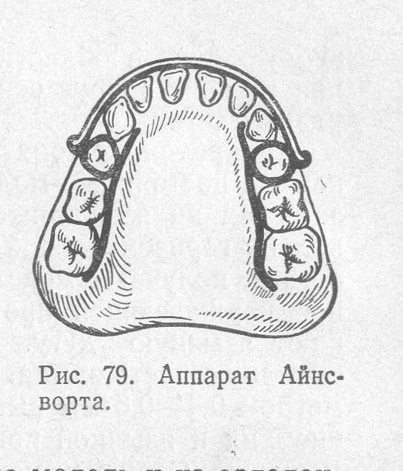 Разновидности несъемных ортодонтических аппаратов механического действия