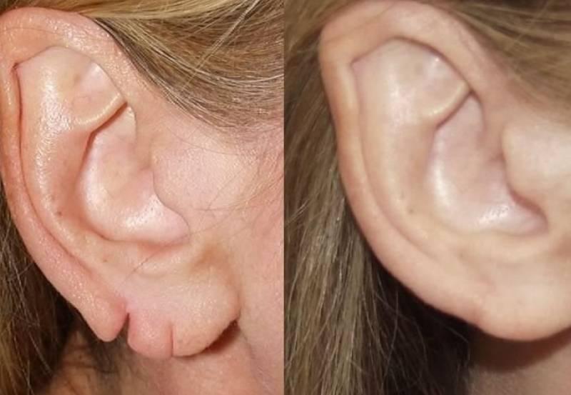 Полная реконструкция ушной раковины: как проходит лечение микротии в израиле?