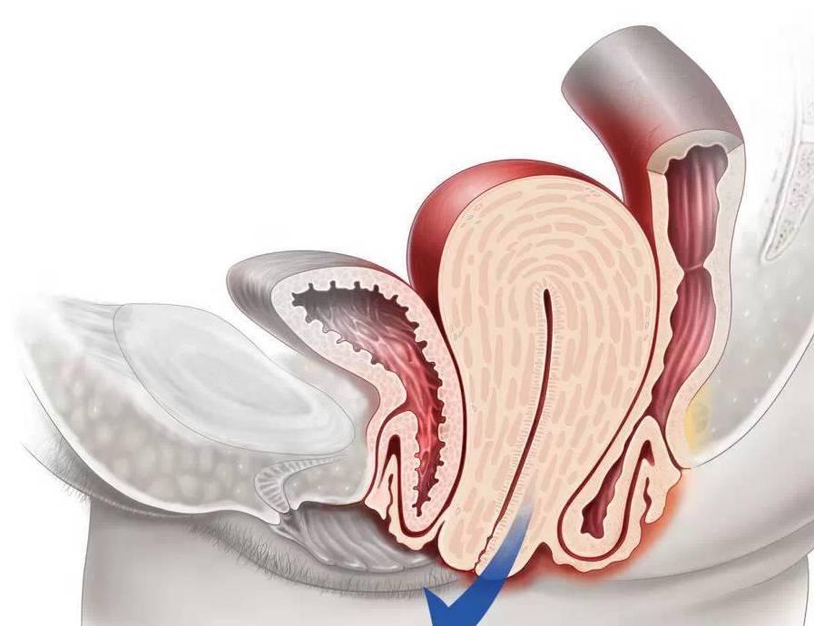 Опущение и выпадение матки и стенок влагалища после родов