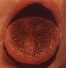 Жёлтый налёт на языке как симптом серьёзных заболеваний
