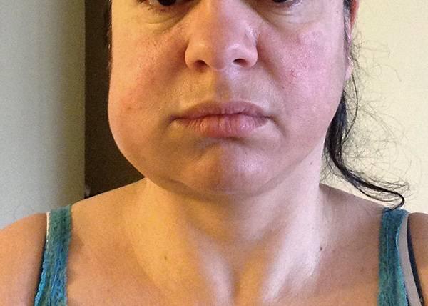 Последствия имплантации: сколько болит десна после процедуры и почему?