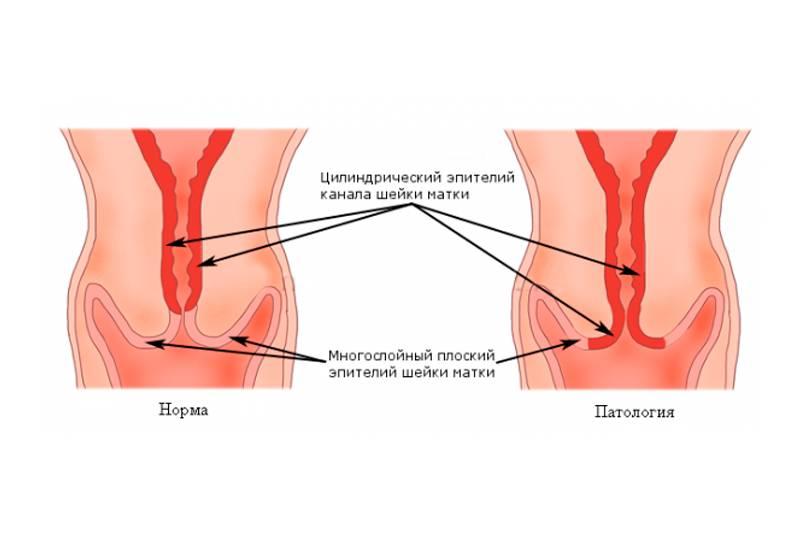 Эктопия шейки матки — способы лечения патологии у женщин