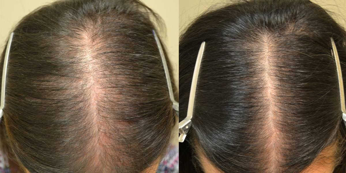 Почему выпадают волосы при менопаузе и как остановить процесс