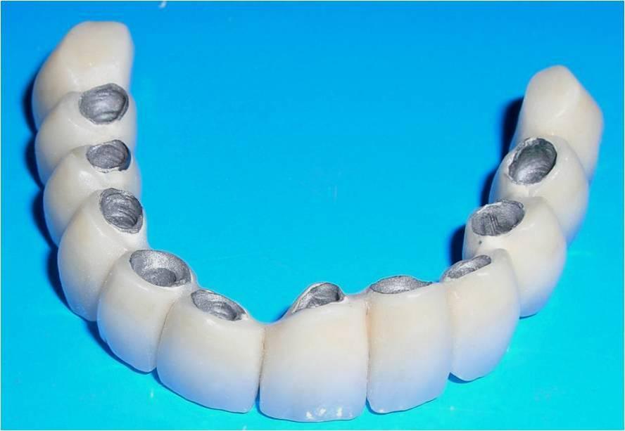 Плюсы и минусы временных и постоянных пластмассовых зубных протезов на передние и жевательные зубы, советы врача