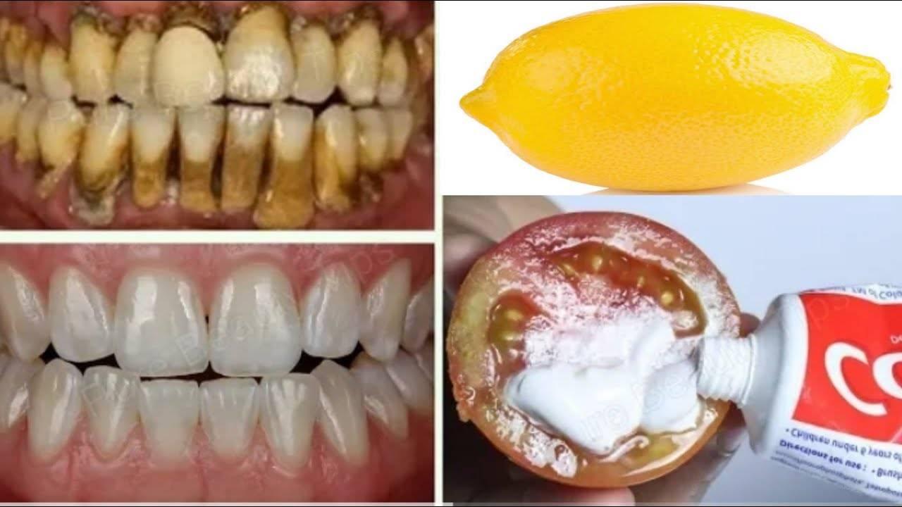 Пятна, налет от кофе на зубах: как отбелить? как пить кофе, чтобы зубы не желтели?