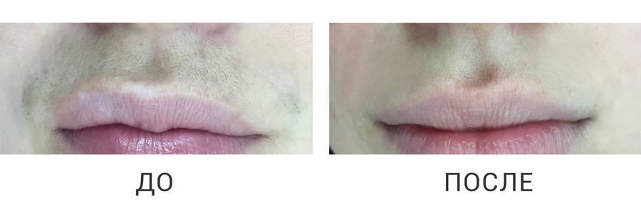 Усики и пушок: удаление волос на верхней губе с помощью лазера