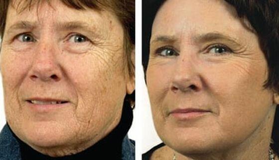 Лазерное омоложение кожи лица — особенности проведения, отзывы пациентов, а также фото до и после