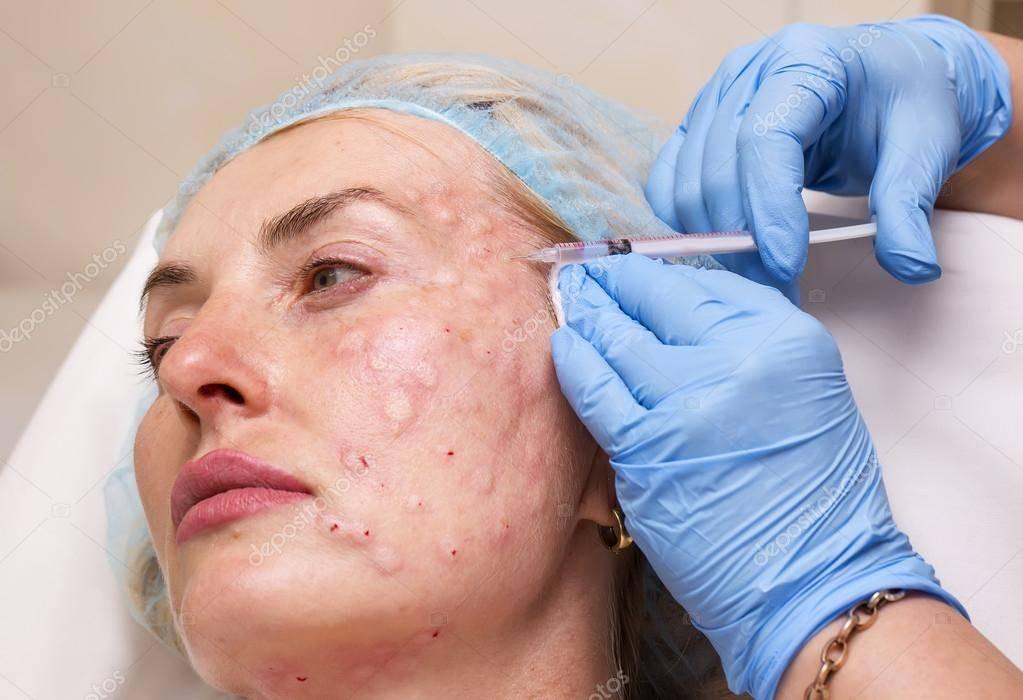 Аллергия на ботокс – в чём выражается и есть ли на самом деле?