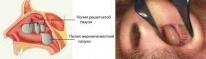 Лечение полипов в носу народными средствами в домашних условиях без операции
